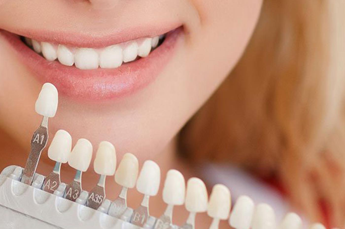 https://dentlotus.com/wp-content/uploads/2021/02/Dental-veneersss.jpg